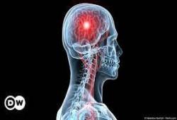 دراسة: فيروس كورونا قد يتسبب بسكتات دماغية